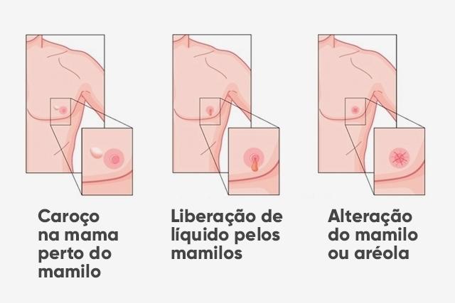 12-sintomas-do-cancer-de-mama_16522_l.jp