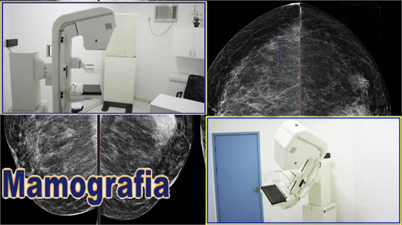Mamografia%20final.jpg