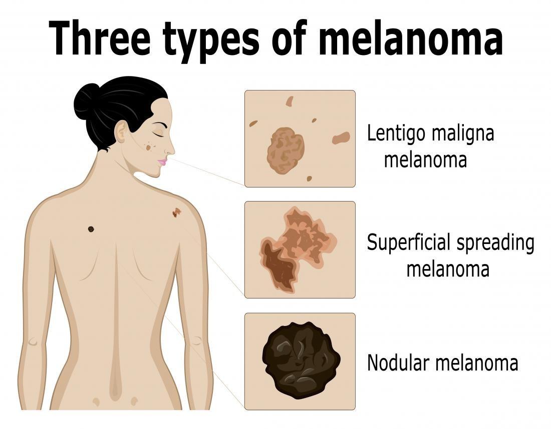 Melanomafoto02grande.jpg