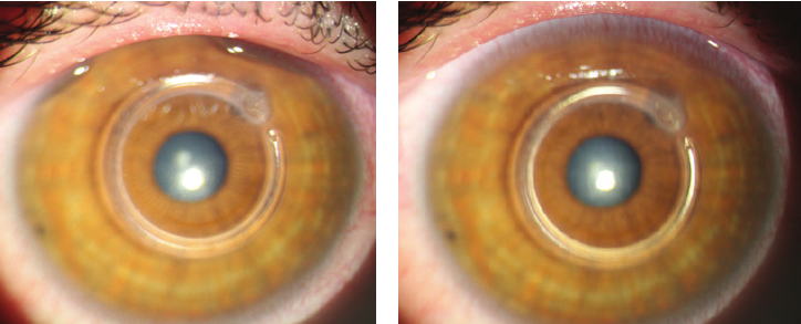 Slit-lamp-examination-of-an-eye-with-ker