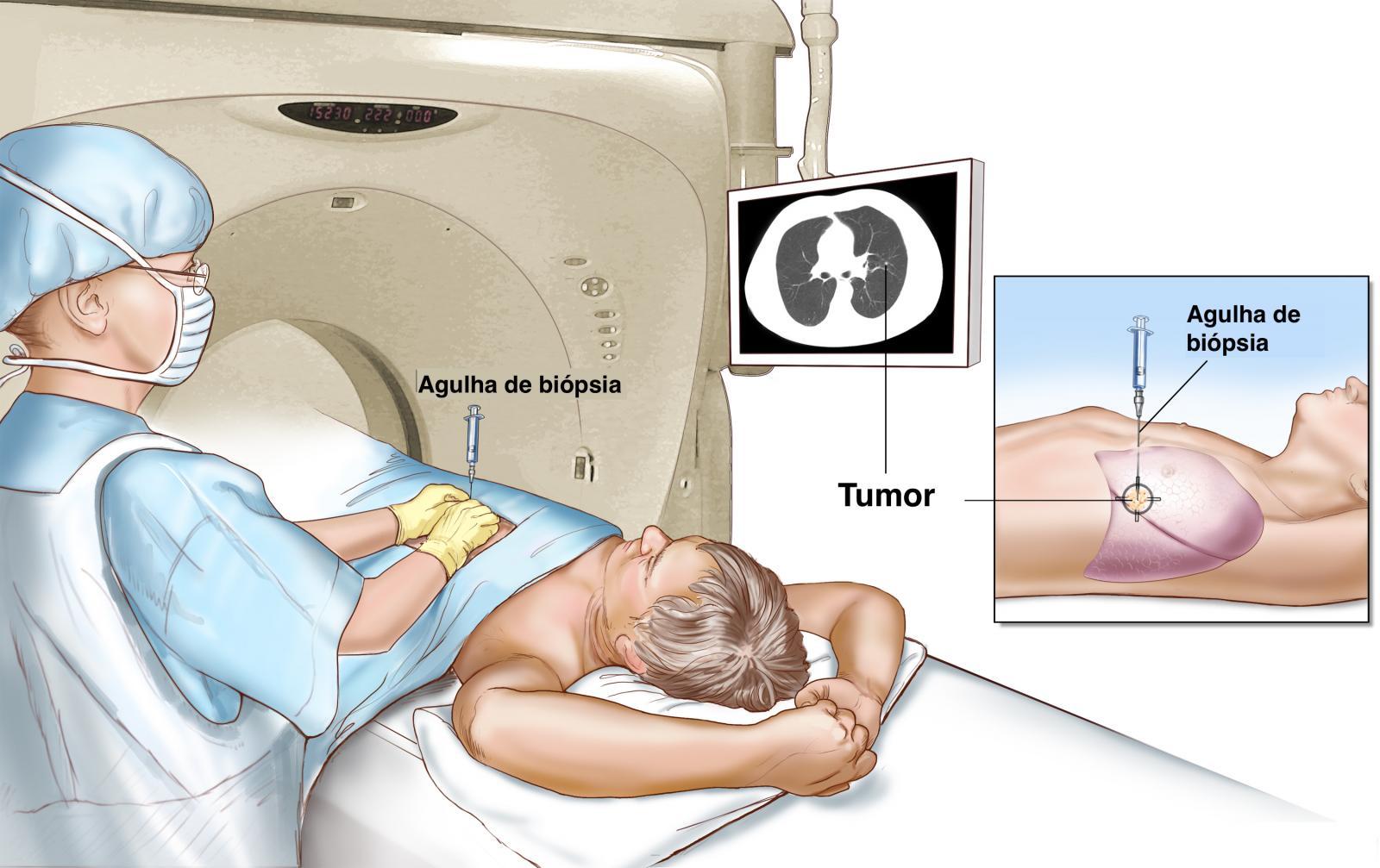 biopsia-guiada-por-imagem.jpg