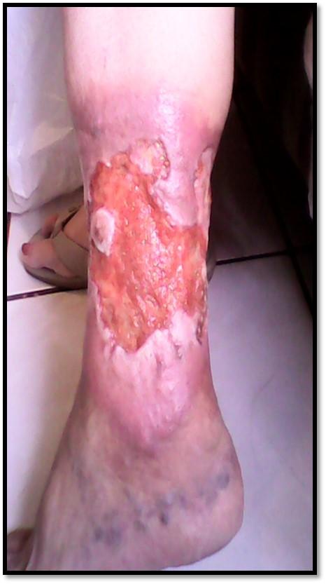 ferida%201.jpg