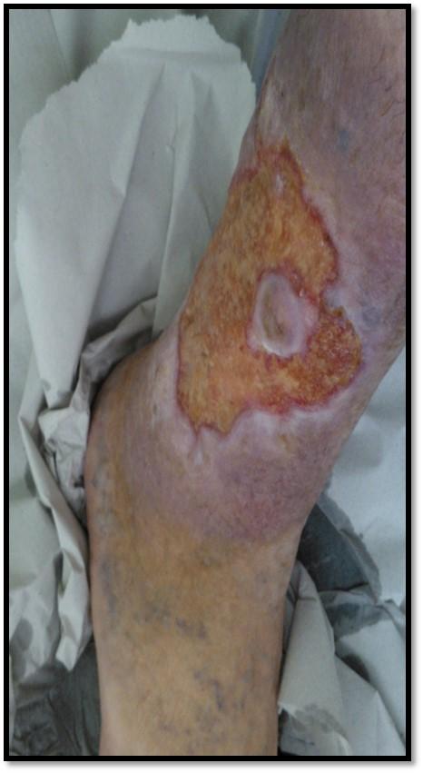 ferida%203.jpg