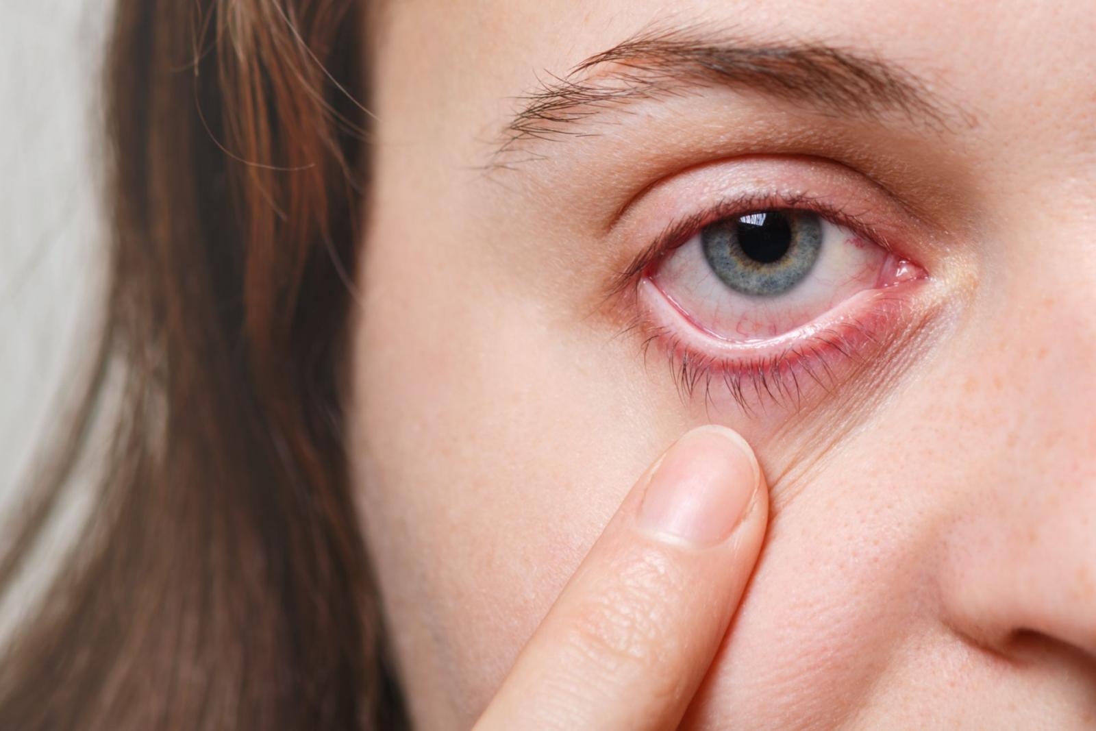 Alergia%20Ocular.jpg